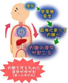身体がゆがむ原因のイメージ