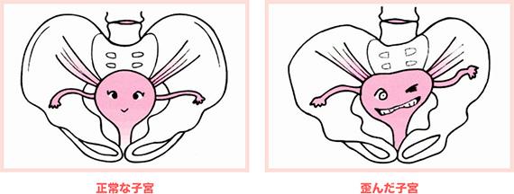 骨盤と子宮の正常とゆがんだ状態の比較