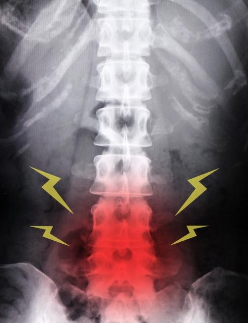 腰の骨の負担による痛み