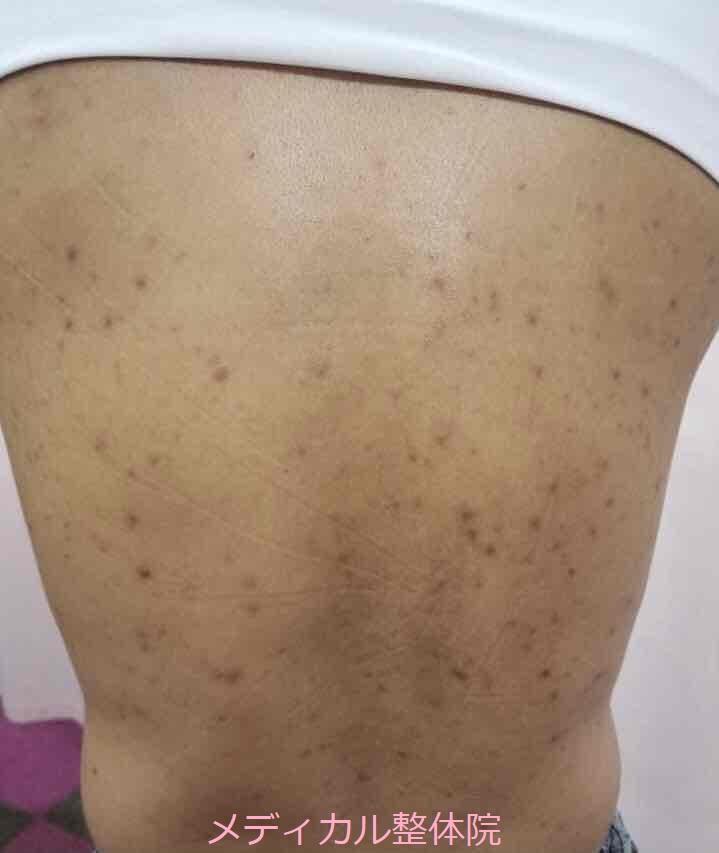 化膿性汗腺炎ビフォー1