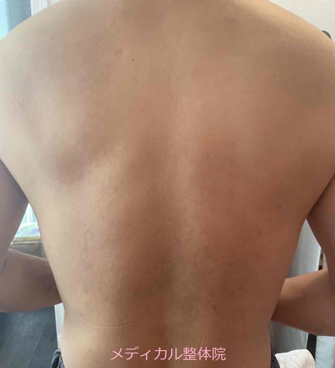 化膿性汗腺炎アフター1